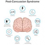 The Concerning State of Concussion Care